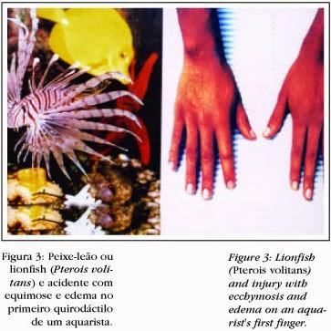 Infecções cutâneas e acidentes por animais traumatizantes e venenosos ocorridos em aquários.