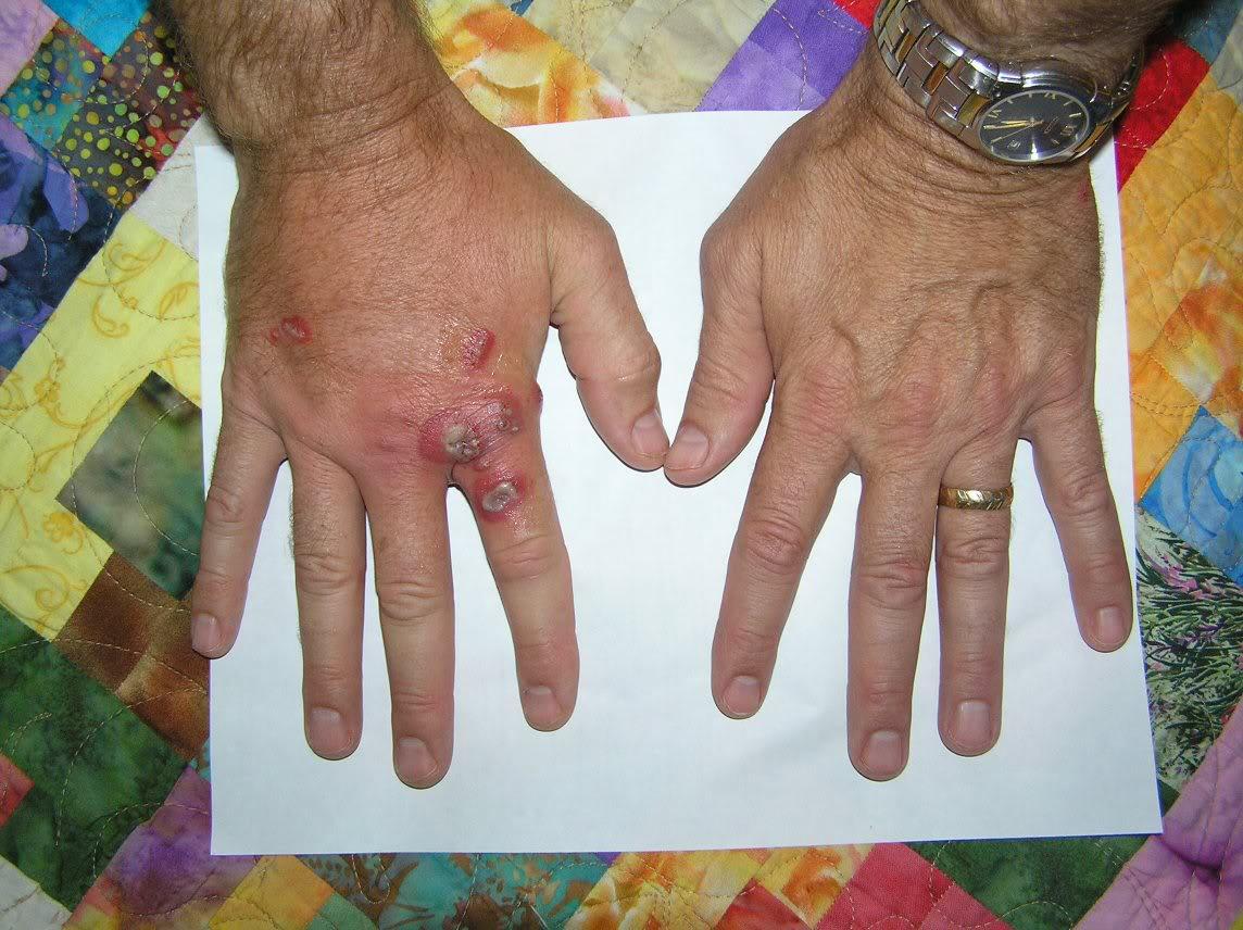 Efeito do Palitoxina nas mãos