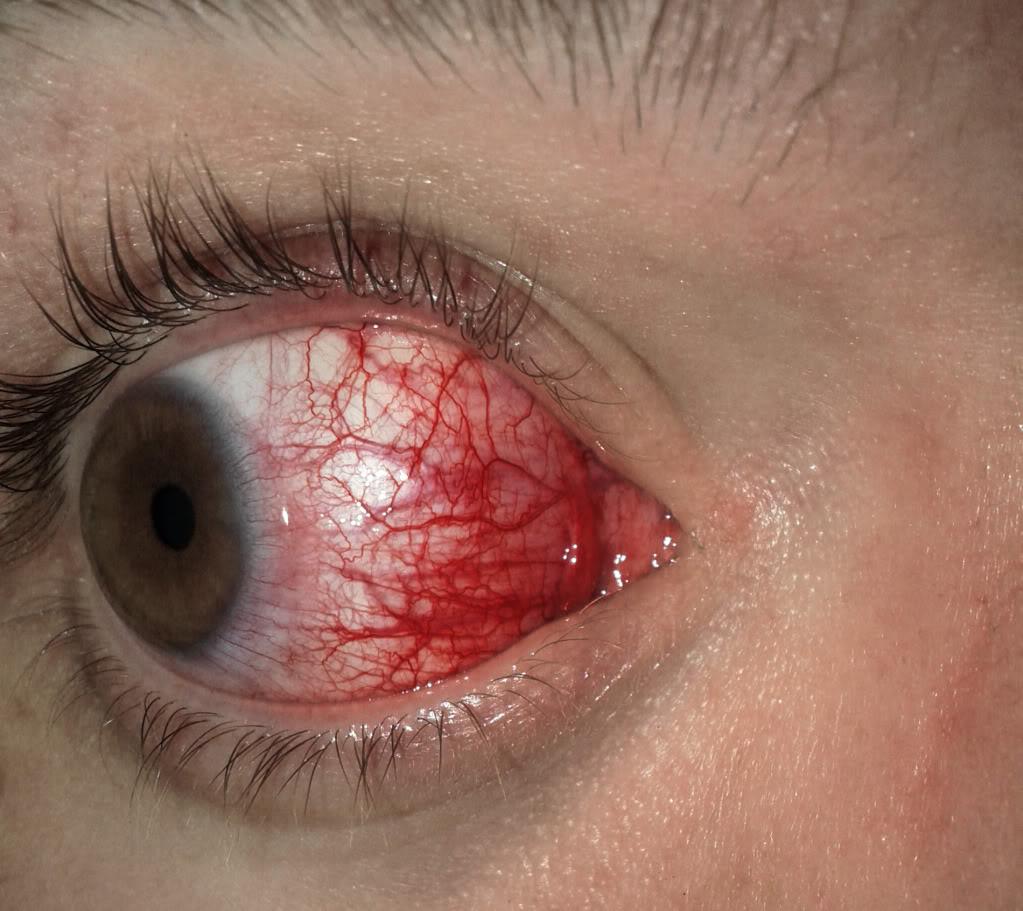 Efeito do Palitoxina nos olhos
